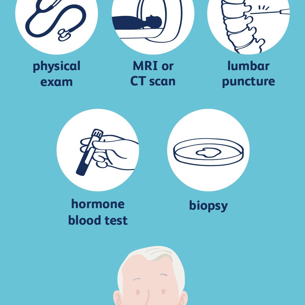 brain-tumor-diagnosis-5b4776ee46e0fb003701ea36.png