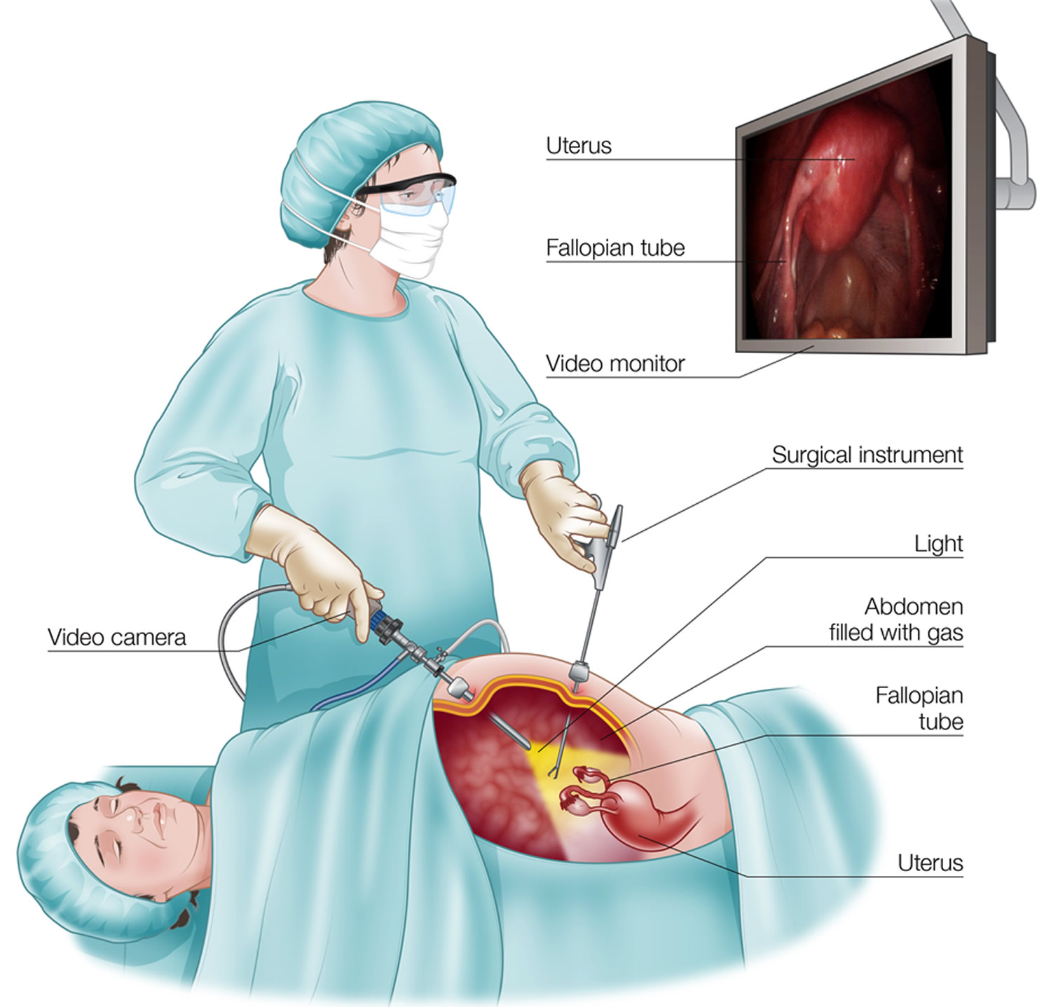 laparoscopy-procedure