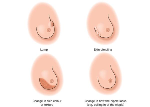 Breast-Lump